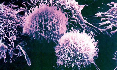 Раковые клетки (8000-кратное увеличение)